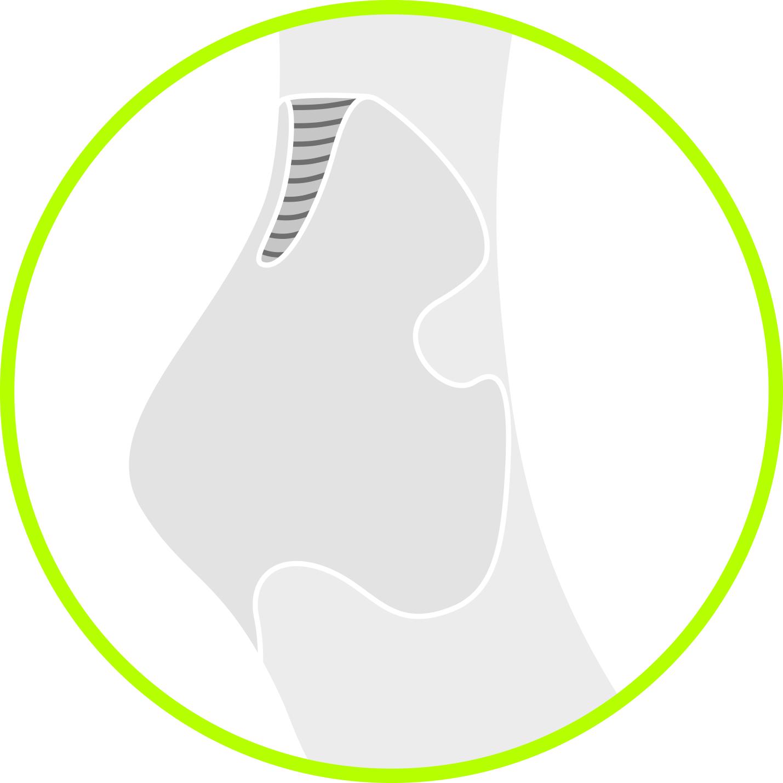 compression-mid-low-cut-socks__achilles-comfort.png